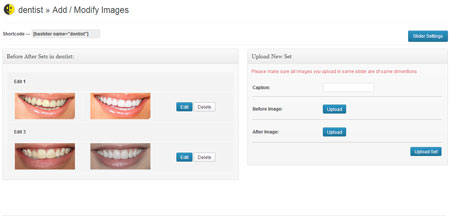 6 Before After Image Comparison Plugins for WordPress